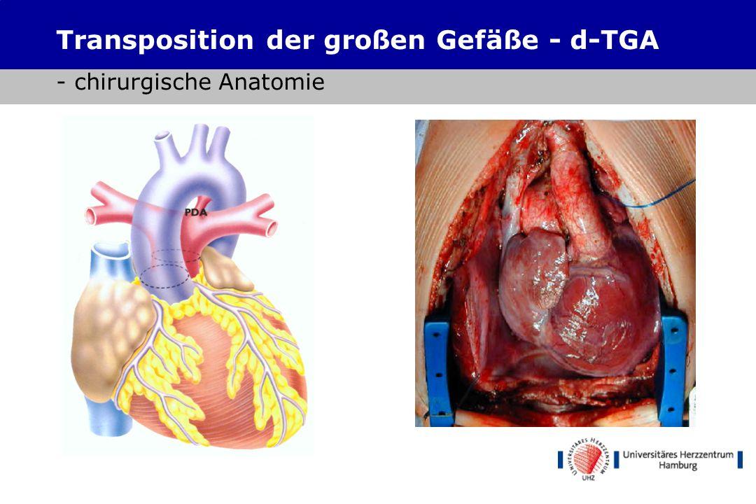 Atrialer Switch Senning Mustard Restindikationen Transposition der großen Gefäße - d-TGA - chirurgische Therapie Arterieller Switch Yacoub (zweizeit.)