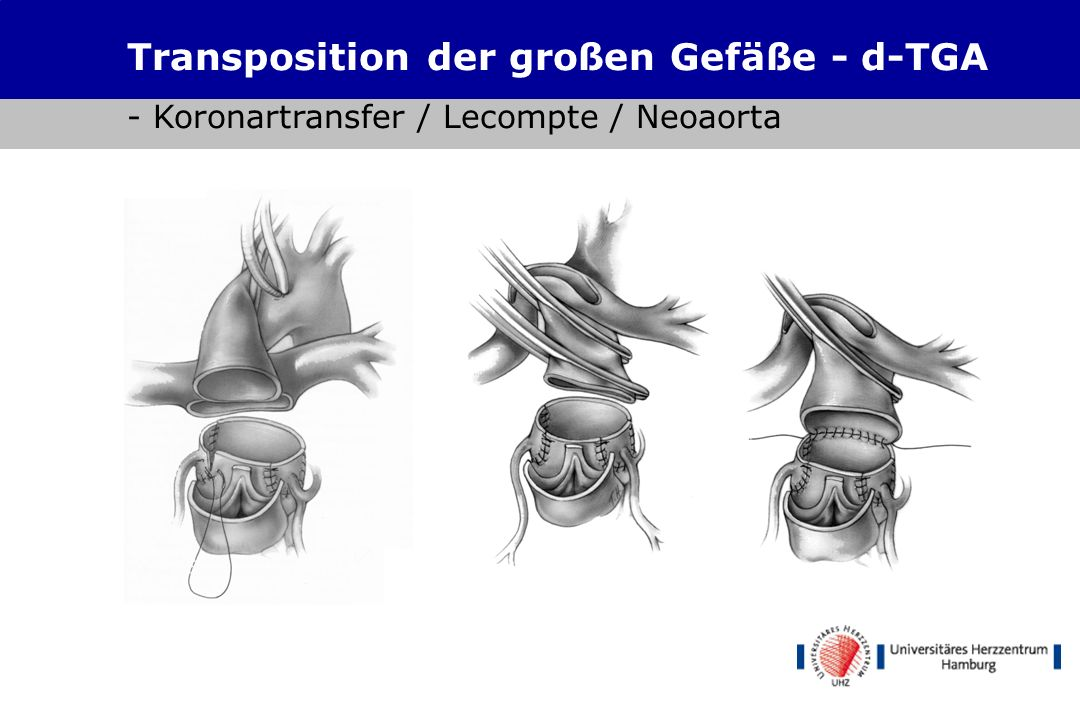 Transposition der großen Gefäße - d-TGA - Koronartransfer
