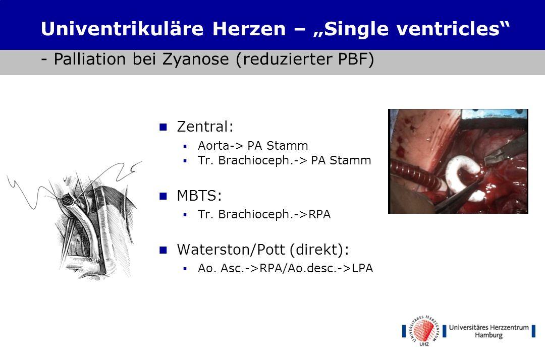 Univentrikuläre Herzfehler Trikuspidalatresie Hypoplastisches Rechtsherzsyndrom mit Pulmonalatresie Hypoplastisches Linksherzsyndrom (HLHS) Formen des
