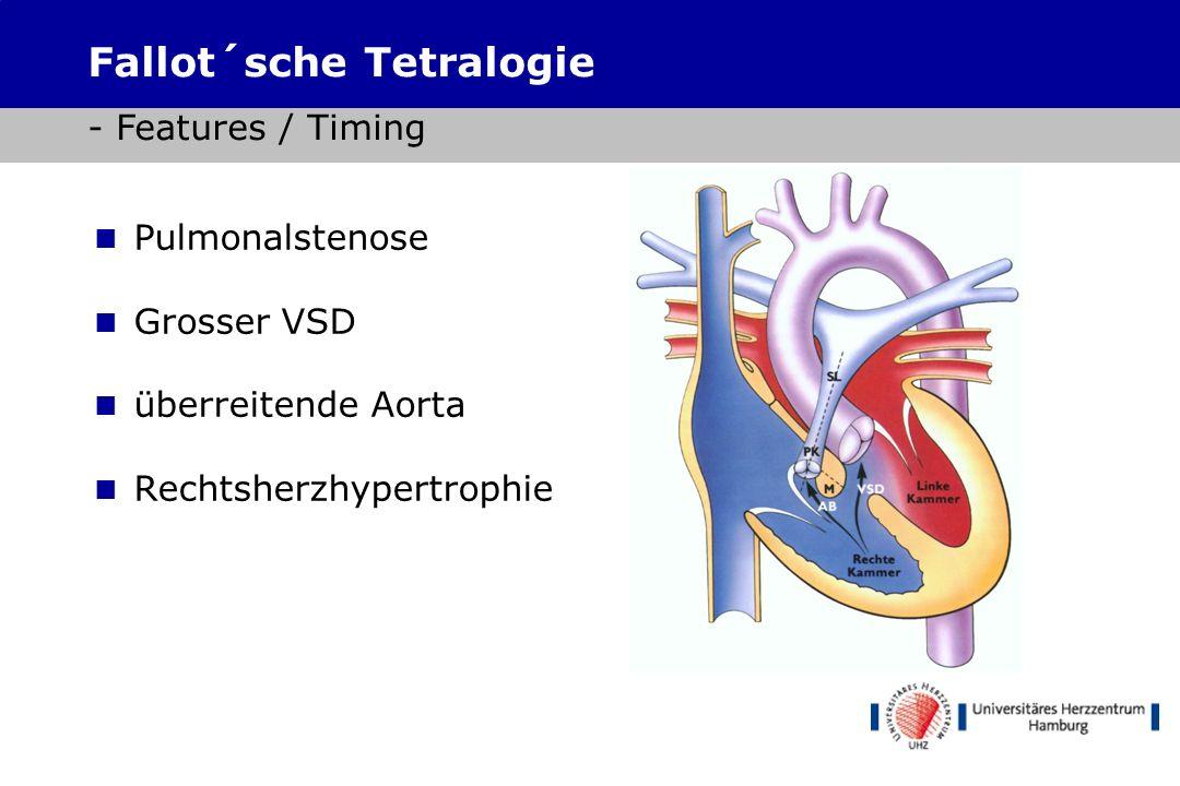 8 pro Tausend in der BRD, ca. 6000 Kinder pro Jahr Nichtzyanotische Herzfehler (pink babies) ASD, VSD, AV-Kanal, PDA.... Zyanotische Herzfehler (blue