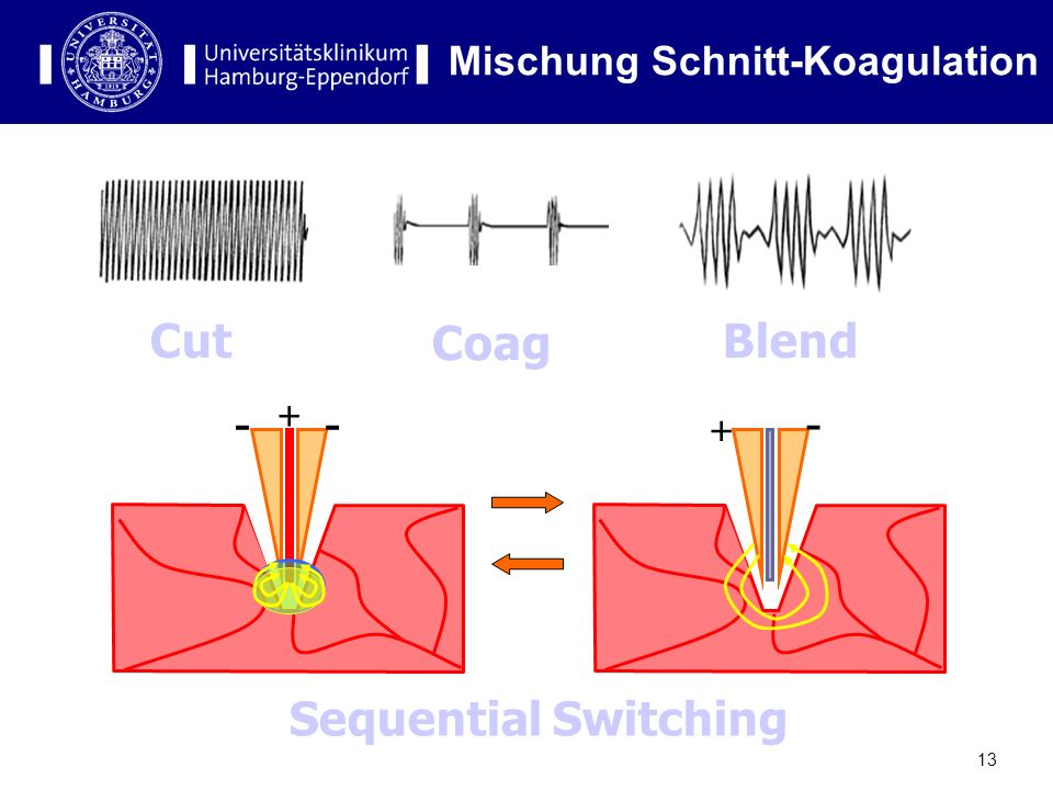13 Cut Coag Blend + -- + - Sequential Switching Mischung Schnitt-Koagulation