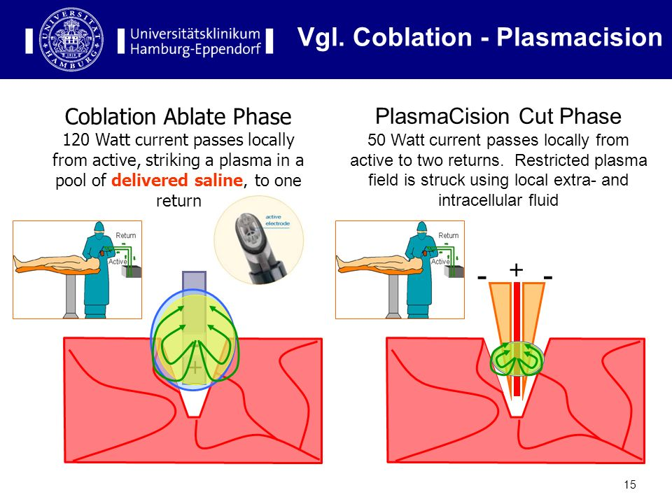 15 - + Coblation Ablate Phase 120 Watt current passes locally from active, striking a plasma in a pool of delivered saline, to one return + -- PlasmaC