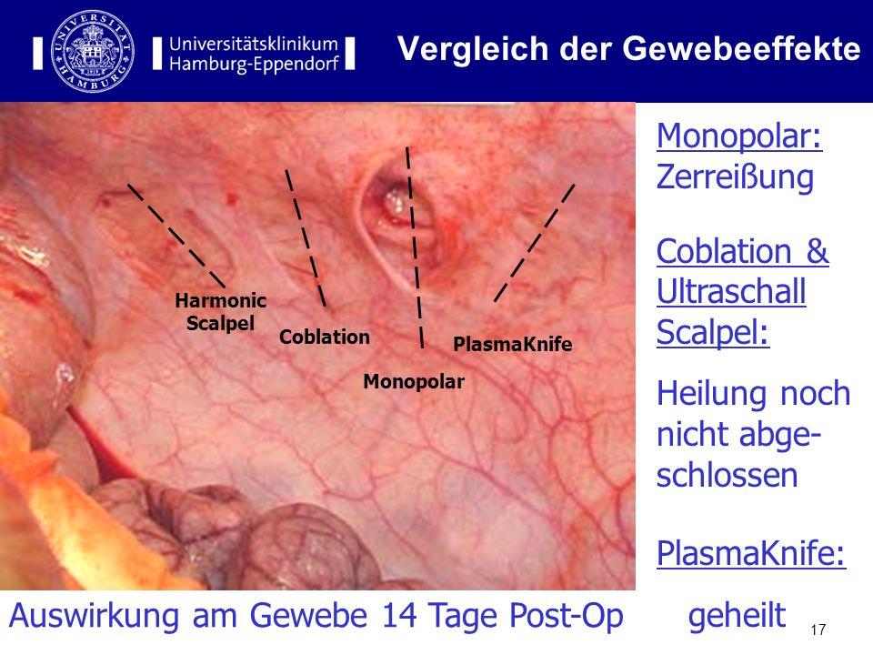 17 Vergleich der Gewebeeffekte Harmonic Scalpel Coblation Monopolar PlasmaKnife Monopolar: Zerreißung Coblation & Ultraschall Scalpel: Heilung noch ni