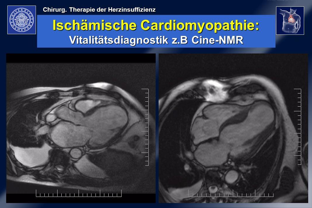 Chirurg. Therapie der Herzinsuffizienz Ischämische Cardiomyopathie: Vitalitätsdiagnostik z.B Cine-NMR