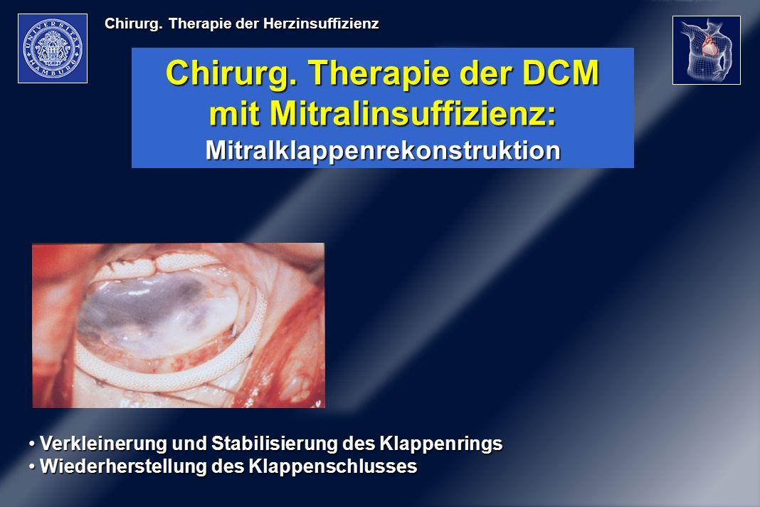 Chirurg. Therapie der Herzinsuffizienz Chirurg. Therapie der DCM mit Mitralinsuffizienz: Mitralklappenrekonstruktion Verkleinerung und Stabilisierung