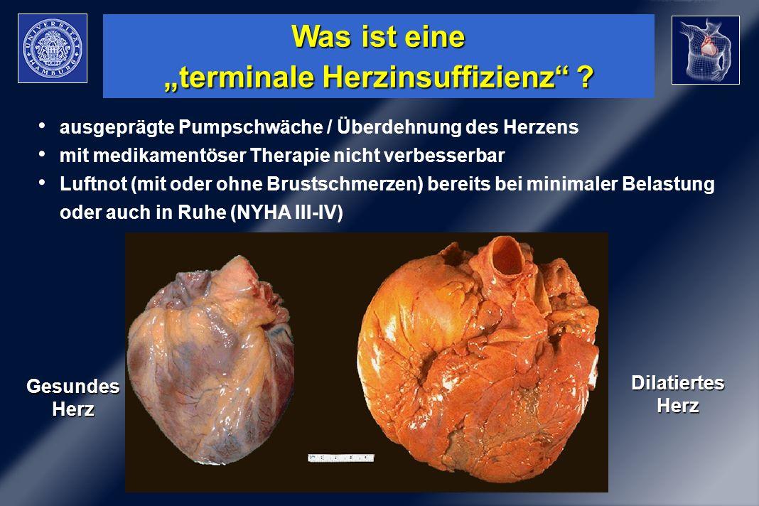 Chirurg. Therapie der Herzinsuffizienz Was ist eine terminale Herzinsuffizienz ? ausgeprägte Pumpschwäche / Überdehnung des Herzens mit medikamentöser