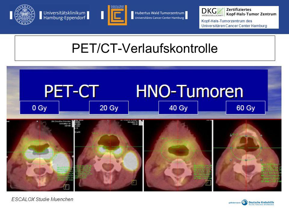 Kopf-Hals-Tumorzentrum des Universitären Cancer Center Hamburg PET/CT-Verlaufskontrolle ESCALOX Studie Muenchen