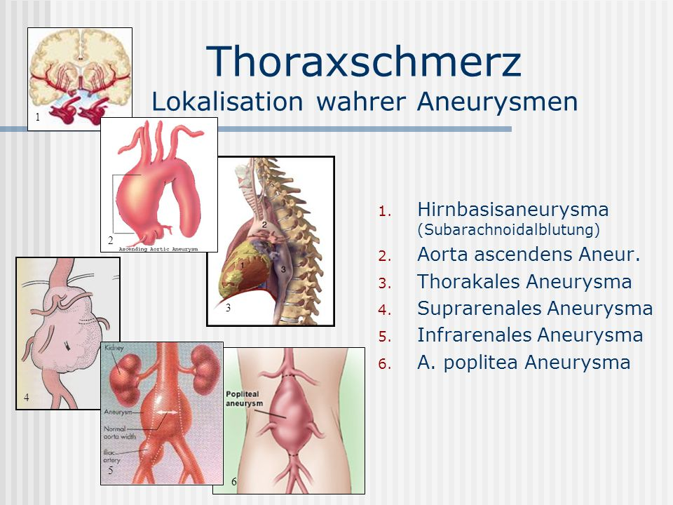 Thoraxschmerz Lokalisation wahrer Aneurysmen 1. Hirnbasisaneurysma (Subarachnoidalblutung) 2. Aorta ascendens Aneur. 3. Thorakales Aneurysma 4. Suprar