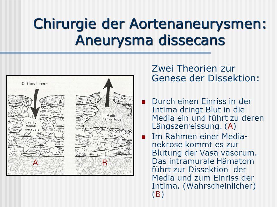 Chirurgie der Aortenaneurysmen: Aneurysma dissecans Zwei Theorien zur Genese der Dissektion: Durch einen Einriss in der Intima dringt Blut in die Medi