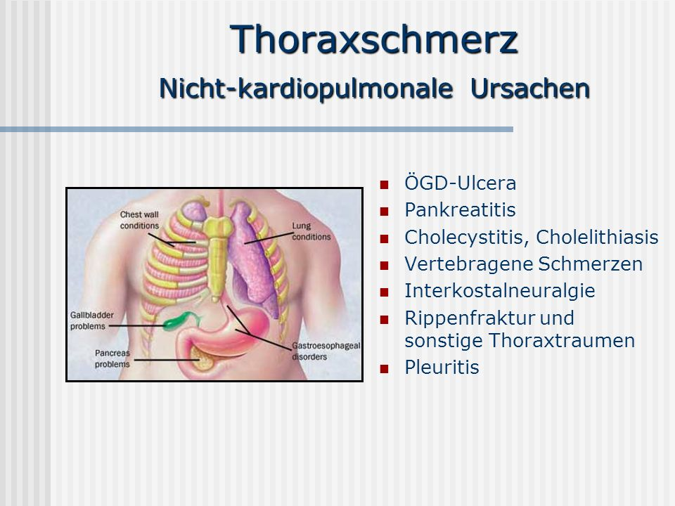 Thoraxschmerz Nicht-kardiopulmonale Ursachen ÖGD-Ulcera Pankreatitis Cholecystitis, Cholelithiasis Vertebragene Schmerzen Interkostalneuralgie Rippenf