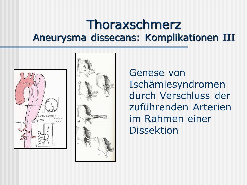 Thoraxschmerz Aneurysma dissecans: Komplikationen III Genese von Ischämiesyndromen durch Verschluss der zuführenden Arterien im Rahmen einer Dissektio