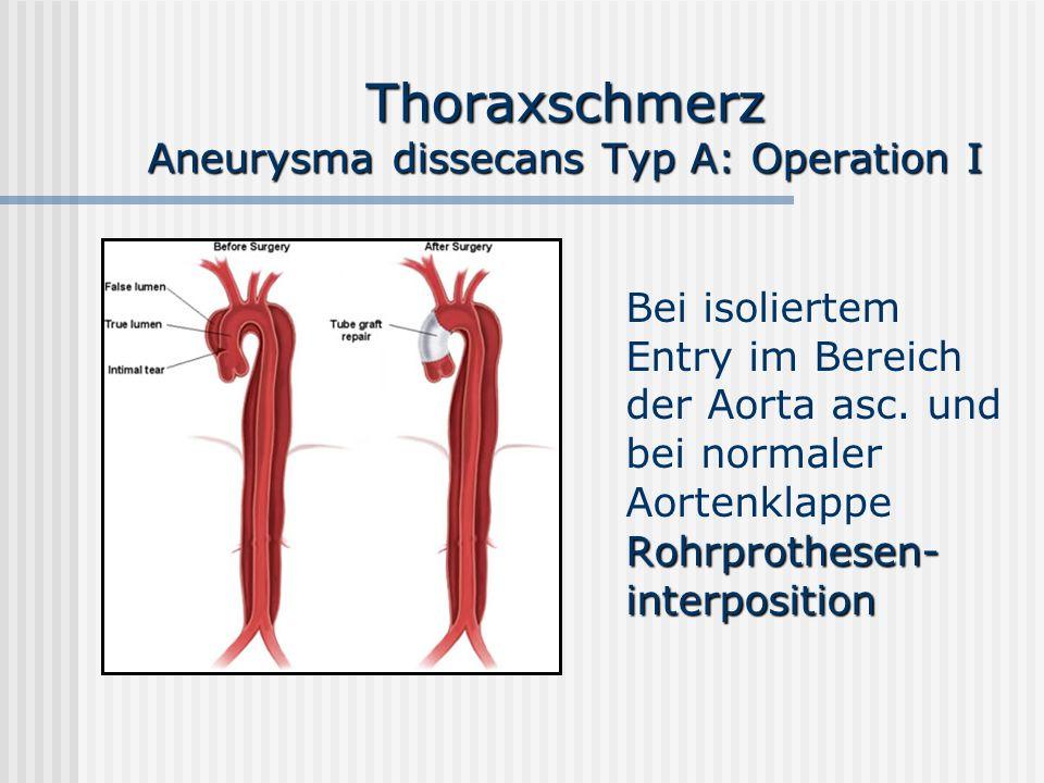 Thoraxschmerz Aneurysma dissecans Typ A: Operation I Rohrprothesen- interposition Bei isoliertem Entry im Bereich der Aorta asc. und bei normaler Aort