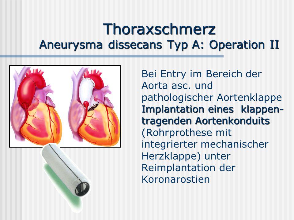 Thoraxschmerz Aneurysma dissecans Typ A: Operation II Implantation eines klappen- tragenden Aortenkonduits Bei Entry im Bereich der Aorta asc. und pat