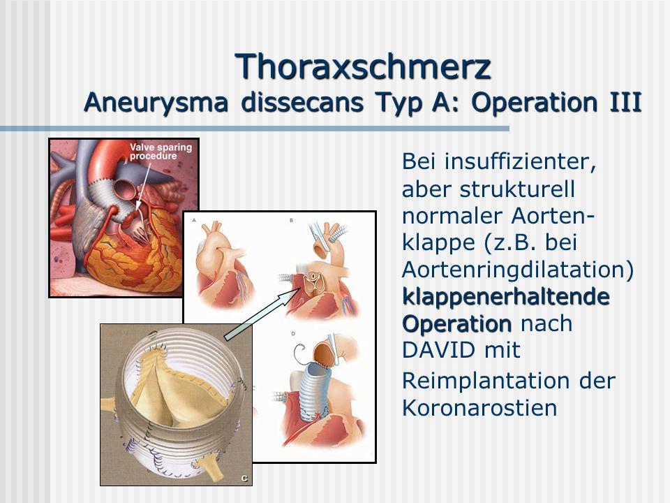 Thoraxschmerz Aneurysma dissecans Typ A: Operation III klappenerhaltende Operation Bei insuffizienter, aber strukturell normaler Aorten- klappe (z.B.
