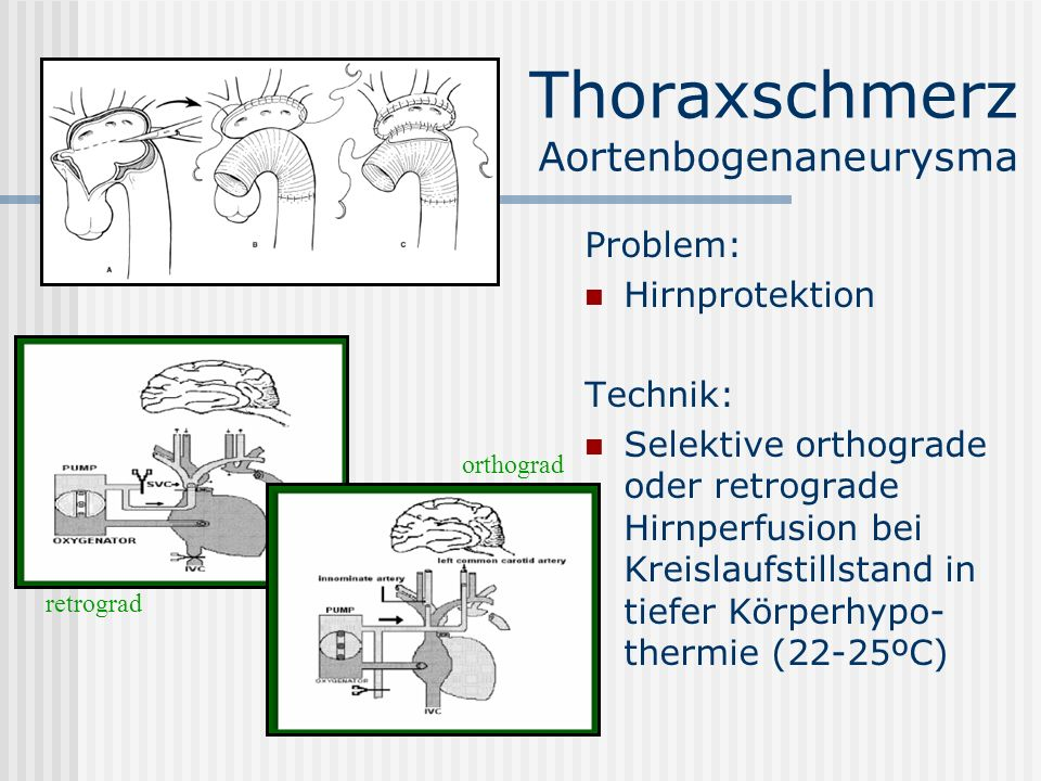 Thoraxschmerz Aortenbogenaneurysma Problem: Hirnprotektion Technik: Selektive orthograde oder retrograde Hirnperfusion bei Kreislaufstillstand in tief