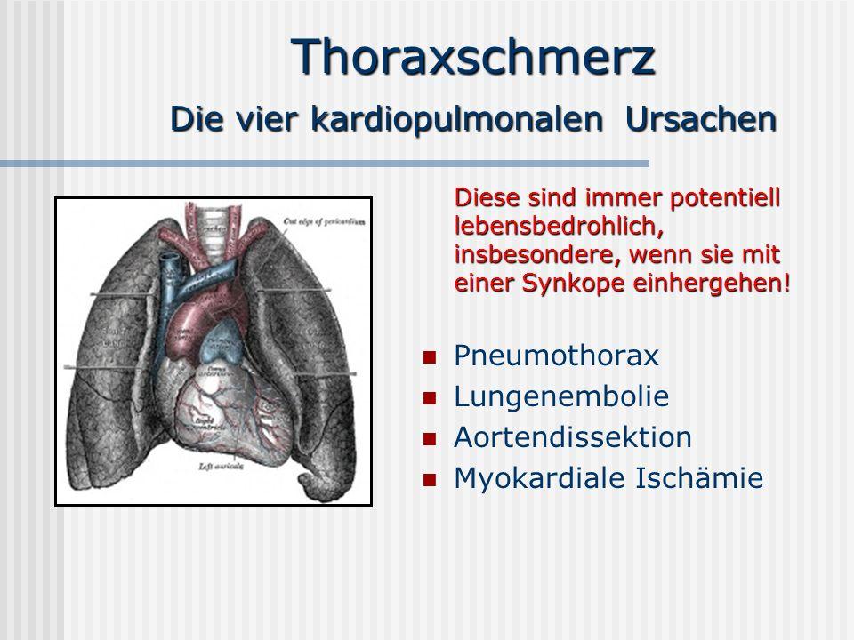 Thoraxschmerz P neumothorax Ursachen: Idiopathisch Thoraxtrauma Iatrogen: ZVK-Anlage, Beatmung, Bülau-Anlage Erkrankungen des Lungen- parenchyms (z.B.bullöses Emphysem, α1-Antitrypsin- Mangel, Marfan-Syndrom, Mukoviszidose) Therapie: Sofortige Drainage CT: Mediastinalshift