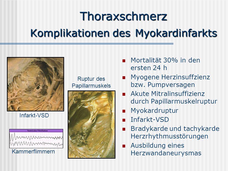 Thoraxschmerz Komplikationen des Myokardinfarkts Mortalität 30% in den ersten 24 h Myogene Herzinsuffzienz bzw. Pumpversagen Akute Mitralinsuffizienz