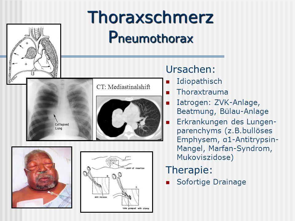 Thoraxschmerz P neumothorax Ursachen: Idiopathisch Thoraxtrauma Iatrogen: ZVK-Anlage, Beatmung, Bülau-Anlage Erkrankungen des Lungen- parenchyms (z.B.