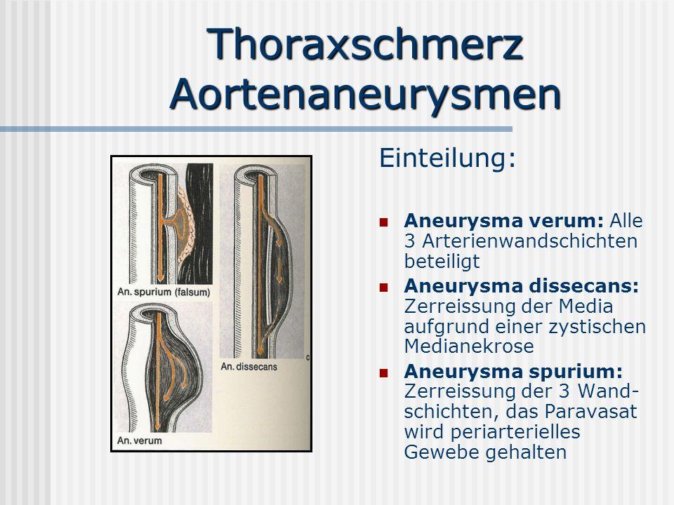 Thoraxschmerz Aortenaneurysmen Einteilung: Aneurysma verum: Alle 3 Arterienwandschichten beteiligt Aneurysma dissecans: Zerreissung der Media aufgrund