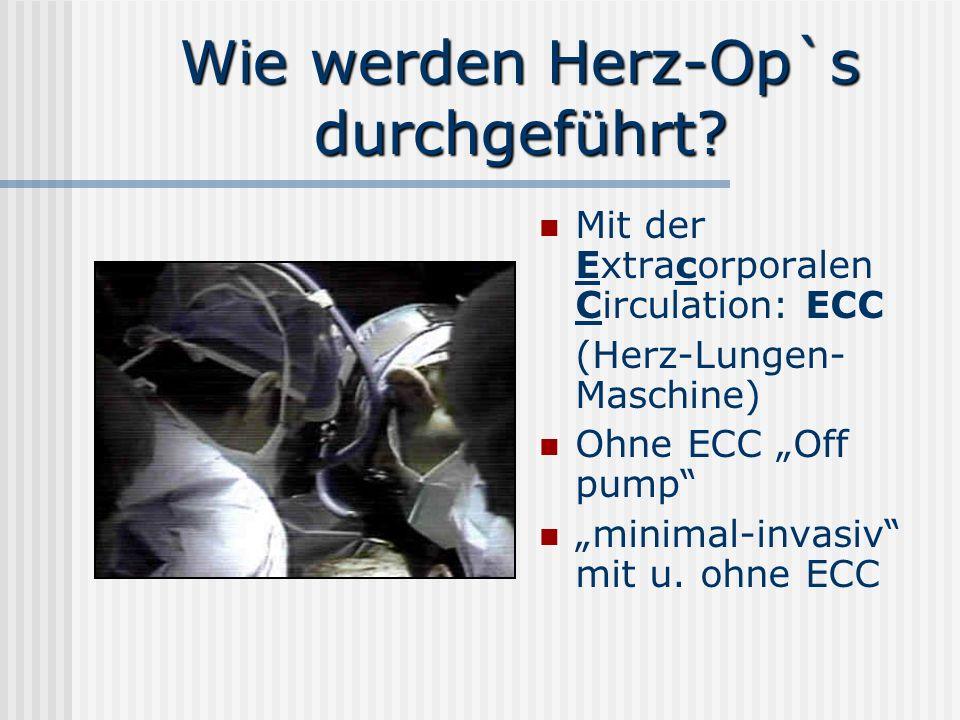 Wie werden Herz-Op`s durchgeführt? Mit der Extracorporalen Circulation: ECC (Herz-Lungen- Maschine) Ohne ECC Off pump minimal-invasiv mit u. ohne ECC
