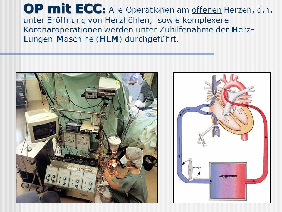 OP mit ECC : OP mit ECC : Alle Operationen am offenen Herzen, d.h. unter Eröffnung von Herzhöhlen, sowie komplexere Koronaroperationen werden unter Zu