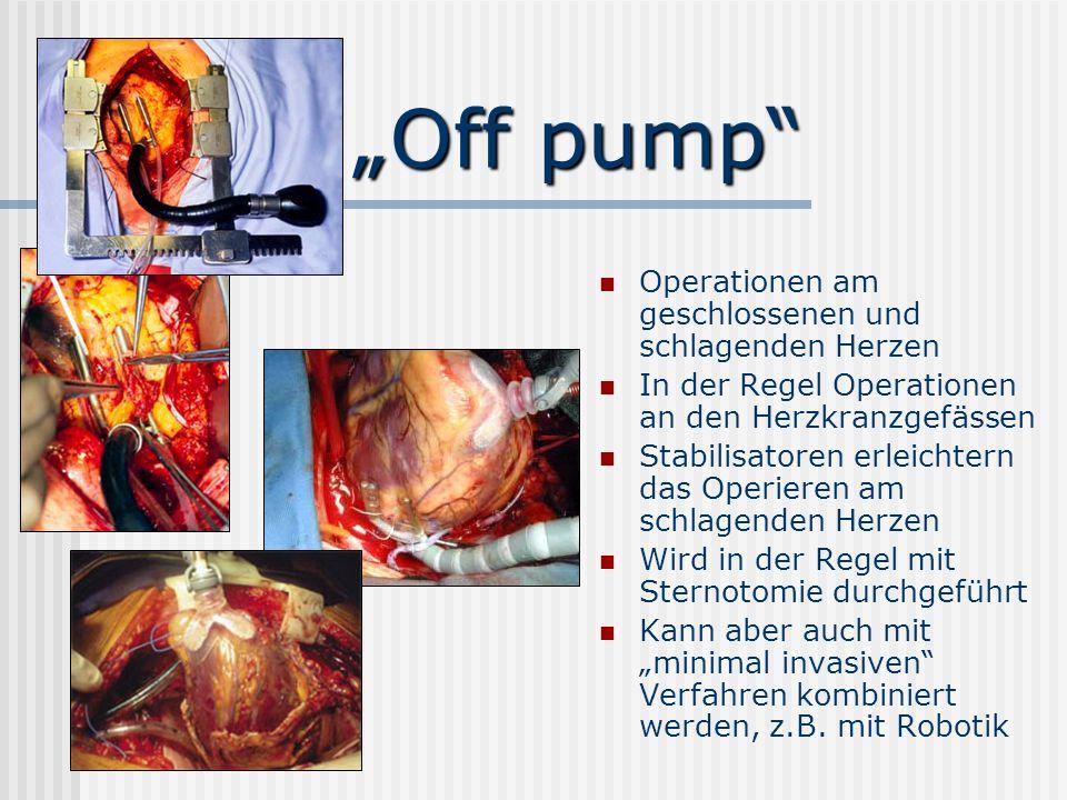 Off pump Operationen am geschlossenen und schlagenden Herzen In der Regel Operationen an den Herzkranzgefässen Stabilisatoren erleichtern das Operiere