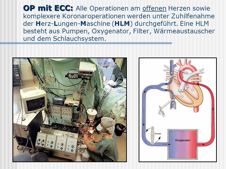 OP mit ECC: OP mit ECC: Alle Operationen am offenen Herzen sowie komplexere Koronaroperationen werden unter Zuhilfenahme der Herz-Lungen-Maschine (HLM