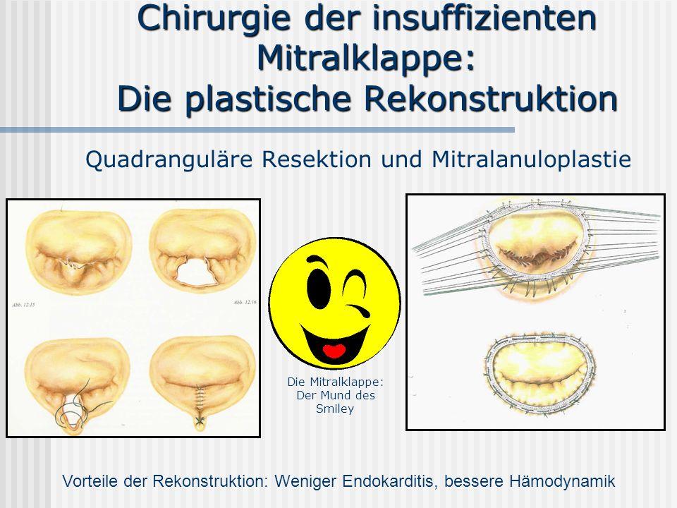 Chirurgie der insuffizienten Mitralklappe: Die plastische Rekonstruktion Quadranguläre Resektion und Mitralanuloplastie Vorteile der Rekonstruktion: W