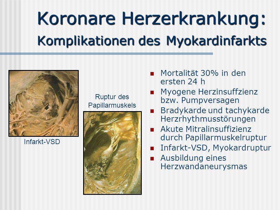 Koronare Herzerkrankung: Komplikationen des Myokardinfarkts Mortalität 30% in den ersten 24 h Myogene Herzinsuffzienz bzw. Pumpversagen Bradykarde und