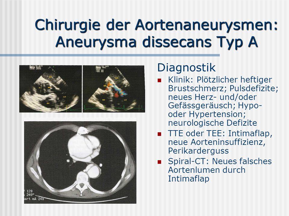 Chirurgie der Aortenaneurysmen: Aneurysma dissecans Typ A Diagnostik Klinik: Plötzlicher heftiger Brustschmerz; Pulsdefizite; neues Herz- und/oder Gef