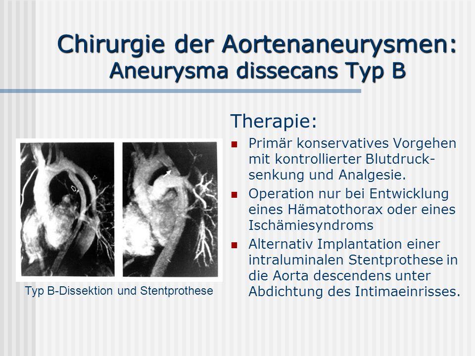 Chirurgie der Aortenaneurysmen: Aneurysma dissecans Typ B Therapie: Primär konservatives Vorgehen mit kontrollierter Blutdruck- senkung und Analgesie.