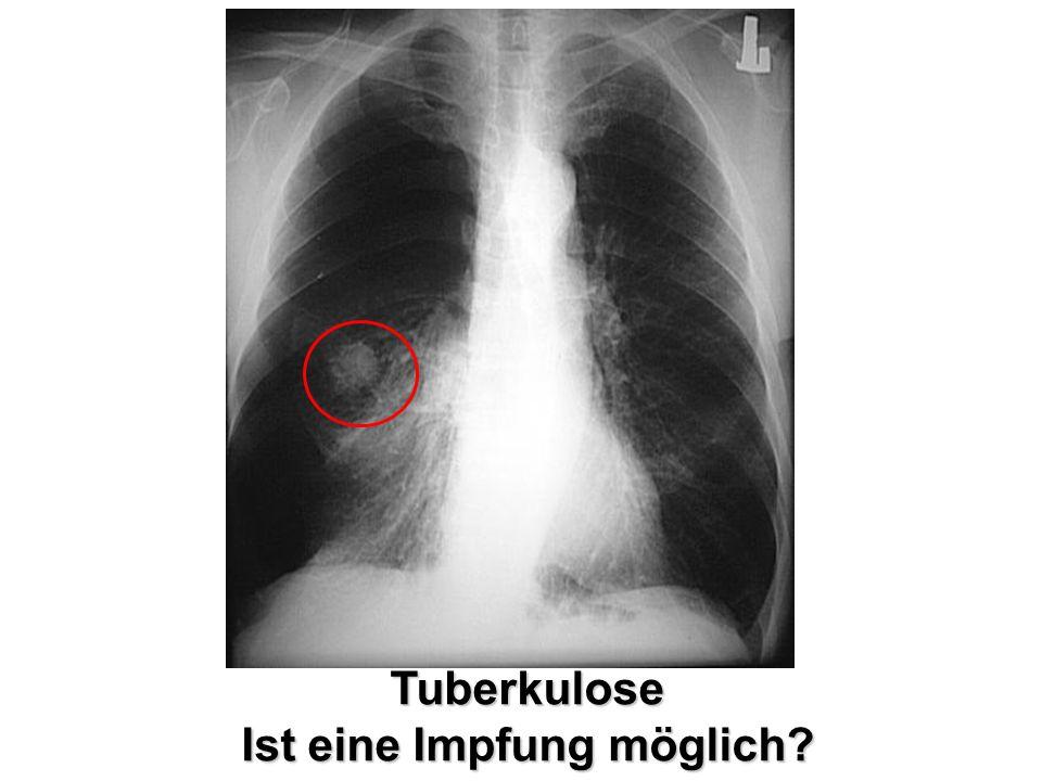 Tuberkulose Ist eine Impfung möglich?