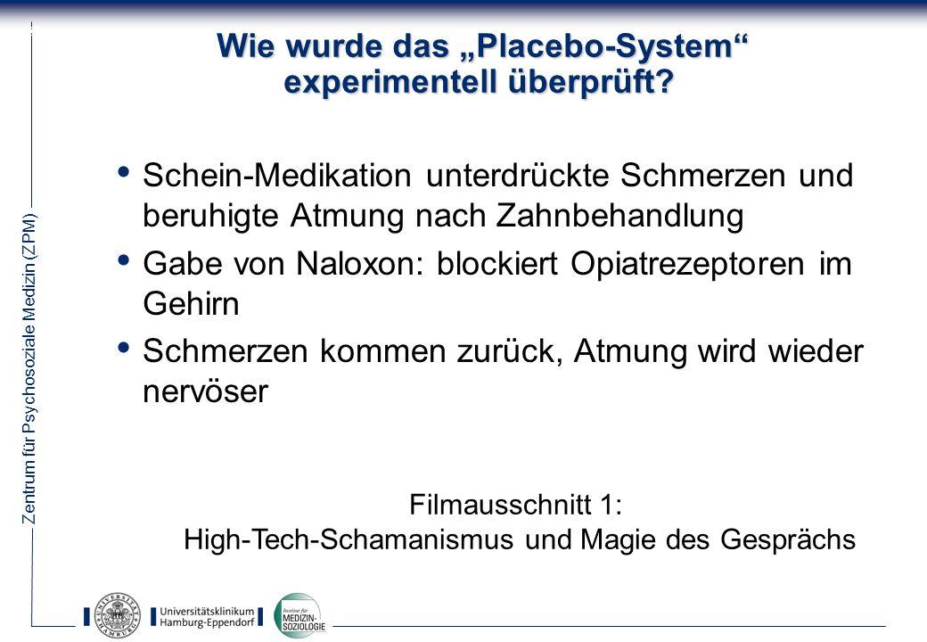 Zentrum für Psychosoziale Medizin (ZPM) 29 Wie wurde das Placebo-System experimentell überprüft.