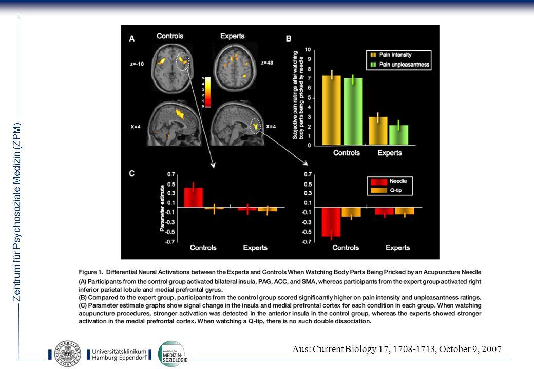 Zentrum für Psychosoziale Medizin (ZPM) 58 Aus: Current Biology 17, 1708-1713, October 9, 2007