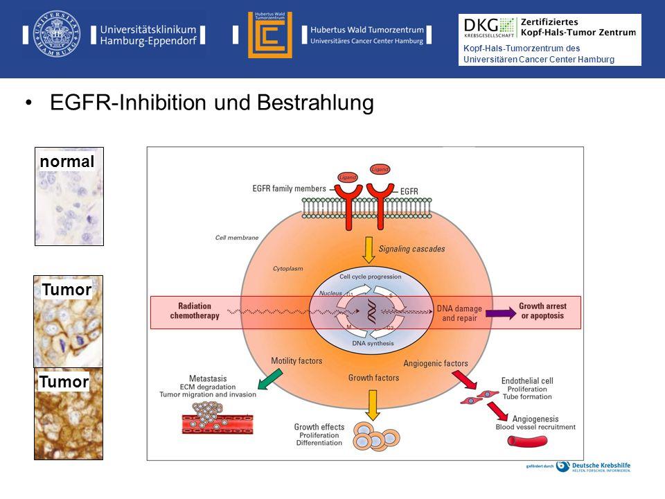 Medikamentöse Tumortherapie der Kopf-, Hals-Tumoren Kopf-Hals-Tumorzentrum des Universitären Cancer Center Hamburg Tumor normal EGFR-Inhibition und Be