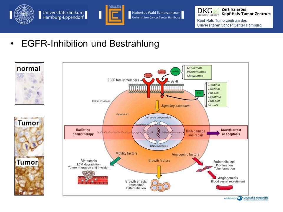Medikamentöse Tumortherapie der Kopf-, Hals-Tumoren Kopf-Hals-Tumorzentrum des Universitären Cancer Center Hamburg normal Tumor EGFR-Inhibition und Be