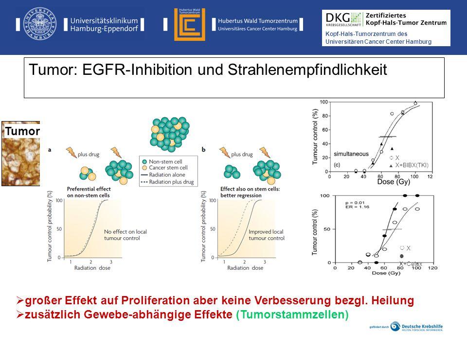 Medikamentöse Tumortherapie der Kopf-, Hals-Tumoren Kopf-Hals-Tumorzentrum des Universitären Cancer Center Hamburg Tumor: EGFR-Inhibition und Strahlen