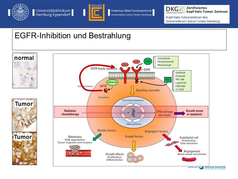 Medikamentöse Tumortherapie der Kopf-, Hals-Tumoren Kopf-Hals-Tumorzentrum des Universitären Cancer Center Hamburg EGFR-Inhibition und Bestrahlung nor