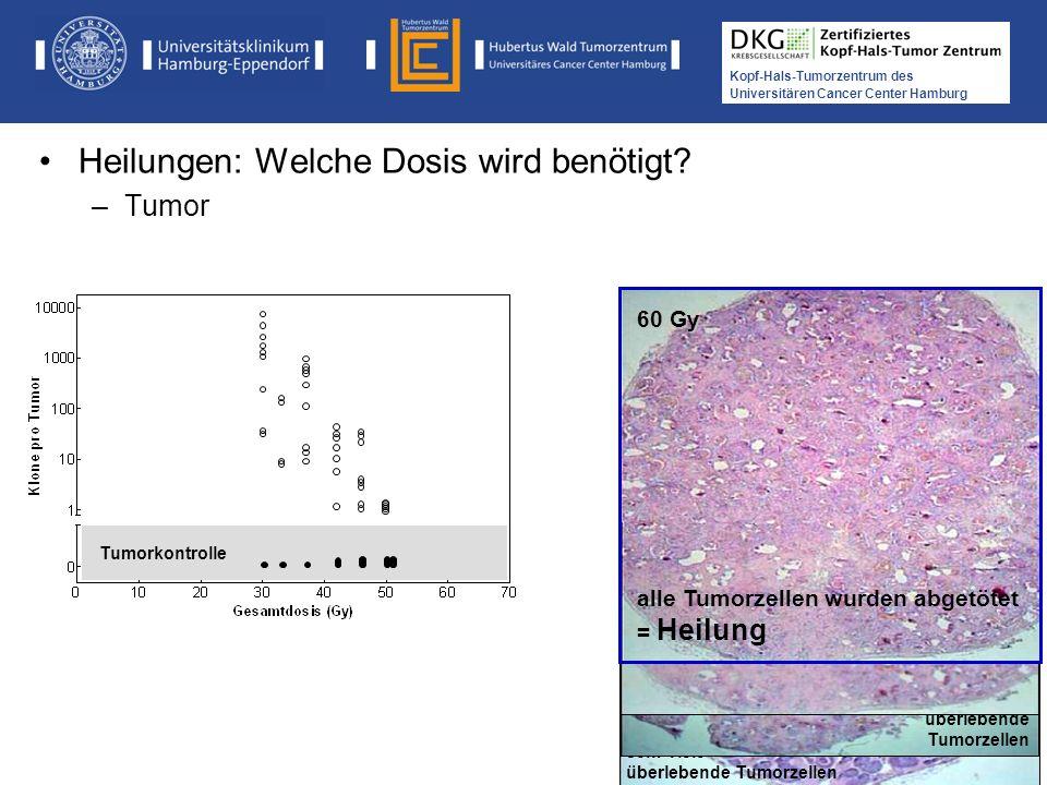 Medikamentöse Tumortherapie der Kopf-, Hals-Tumoren Kopf-Hals-Tumorzentrum des Universitären Cancer Center Hamburg 33 Gy sehr viele überlebende Tumorz