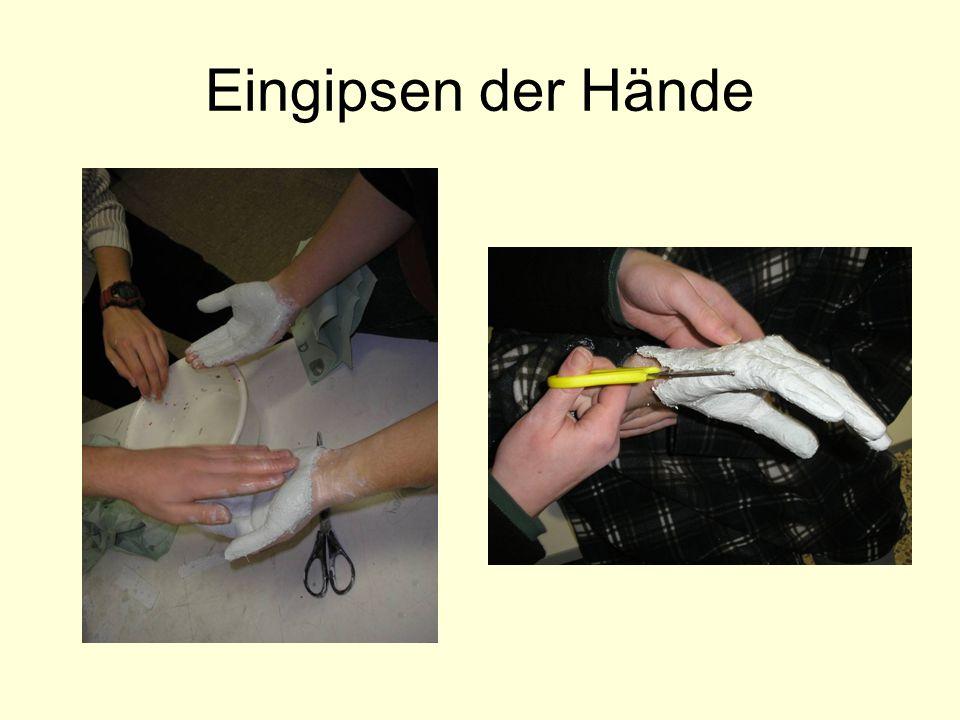 Eingipsen der Hände