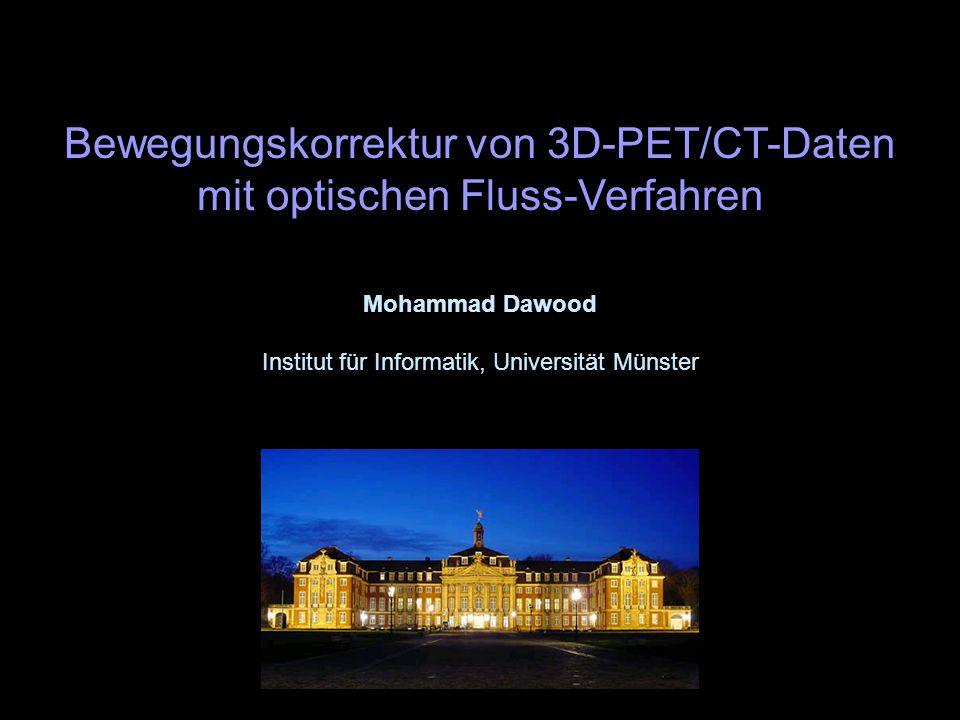 Bewegungskorrektur von 3D-PET/CT-Daten mit optischen Fluss-Verfahren Mohammad Dawood Institut für Informatik, Universität Münster