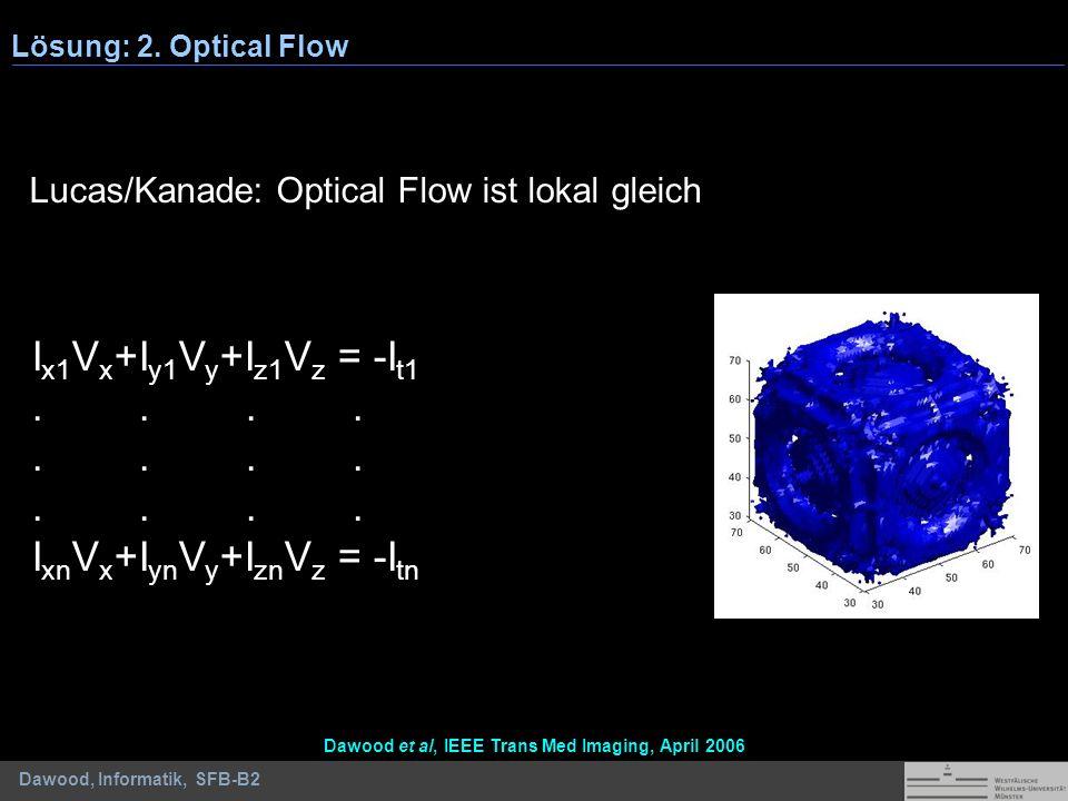 Dawood, Informatik, SFB-B2 Lösung: 2. Optical Flow Lucas/Kanade: Optical Flow ist lokal gleich I x1 V x +I y1 V y +I z1 V z = -I t1.... I xn V x +I yn