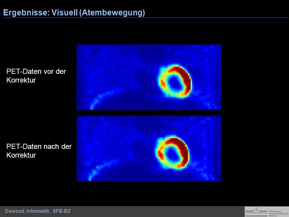 Dawood, Informatik, SFB-B2 Ergebnisse: Visuell (Atembewegung) PET-Daten vor der Korrektur PET-Daten nach der Korrektur