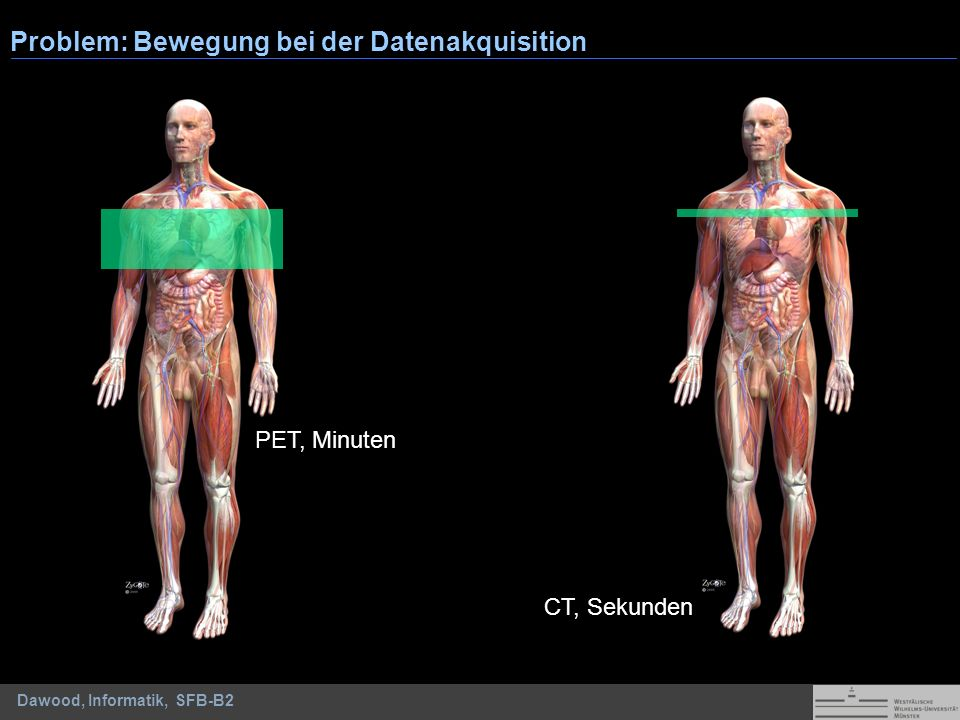 Dawood, Informatik, SFB-B2 Problem: Bewegung bei der Datenakquisition PET, Minuten CT, Sekunden