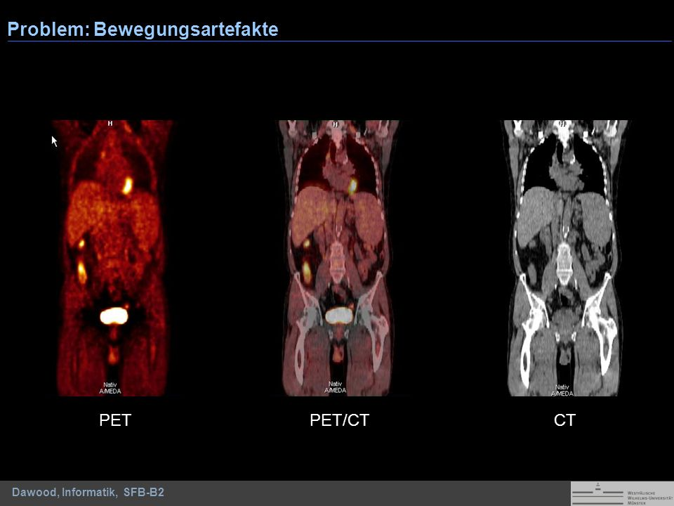 Dawood, Informatik, SFB-B2 PETCT Problem: Bewegungsartefakte PET/CT