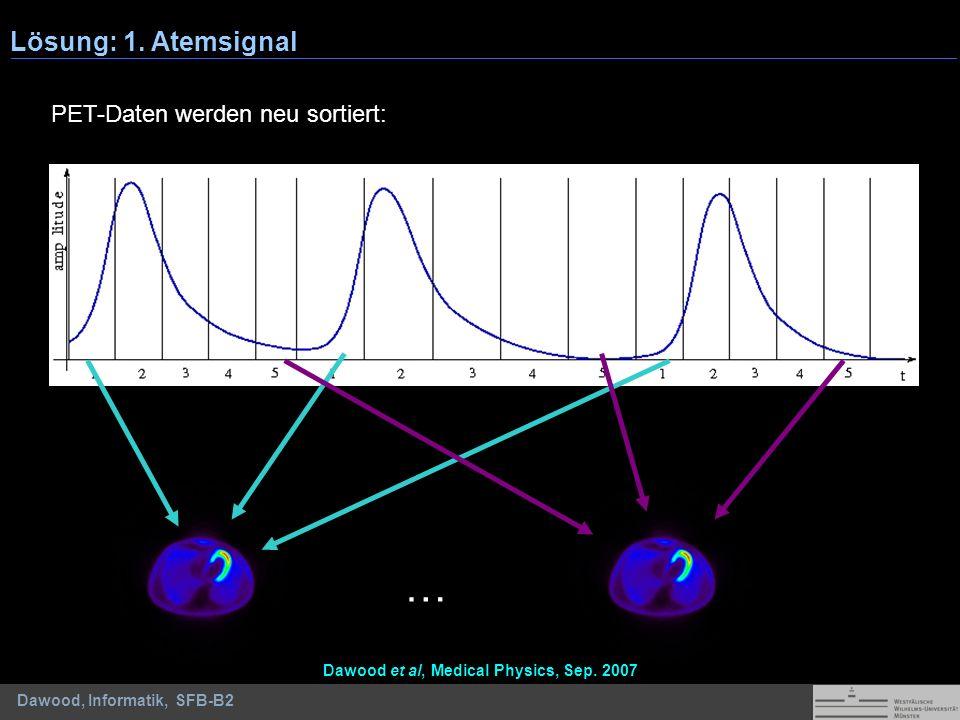 Dawood, Informatik, SFB-B2 … Lösung: 1. Atemsignal Dawood et al, Medical Physics, Sep. 2007 PET-Daten werden neu sortiert: