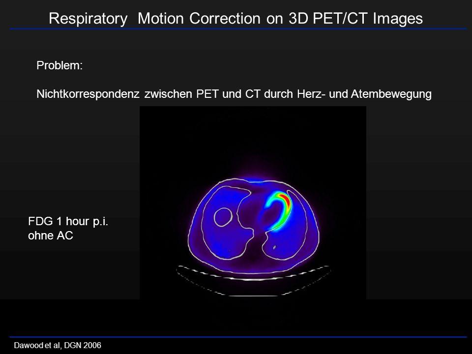 Respiratory Motion Correction on 3D PET/CT Images Dawood et al, DGN 2006 Problem: Nichtkorrespondenz zwischen PET und CT durch Herz- und Atembewegung FDG 1 hour p.i.