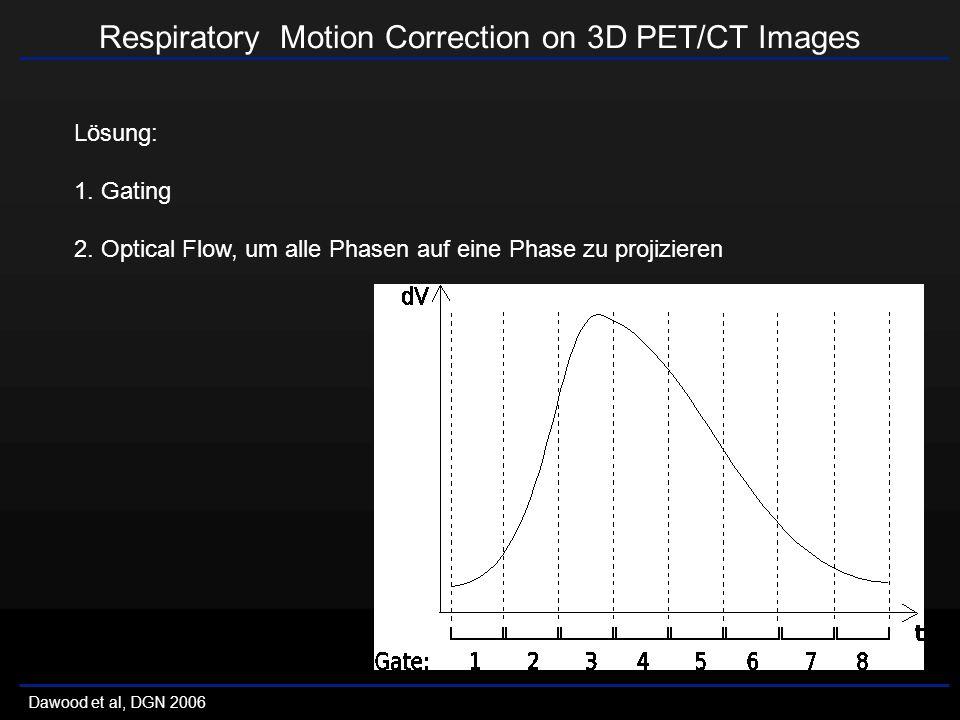 Respiratory Motion Correction on 3D PET/CT Images Dawood et al, DGN 2006 Lösung: 1.