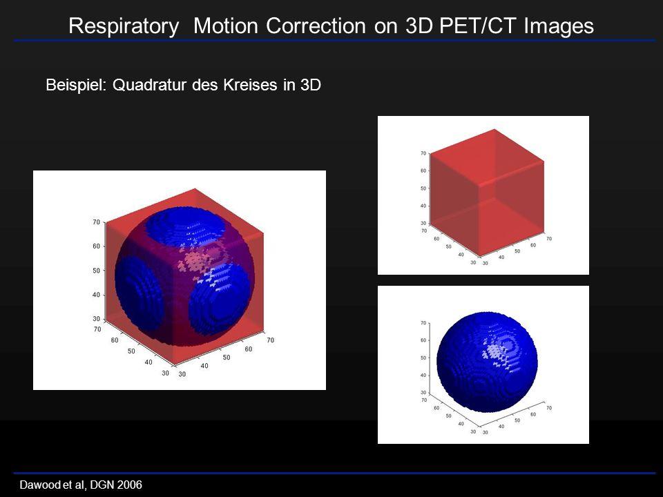 Respiratory Motion Correction on 3D PET/CT Images Dawood et al, DGN 2006 Beispiel: Quadratur des Kreises in 3D