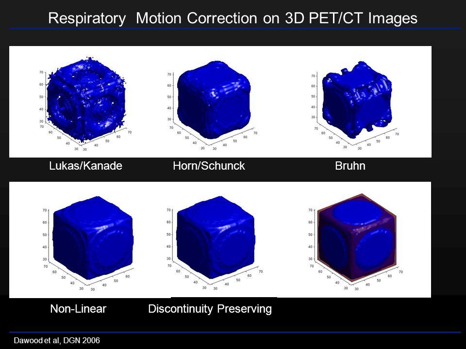Respiratory Motion Correction on 3D PET/CT Images Dawood et al, DGN 2006 Lukas/Kanade Horn/Schunck Bruhn Non-Linear Discontinuity Preserving